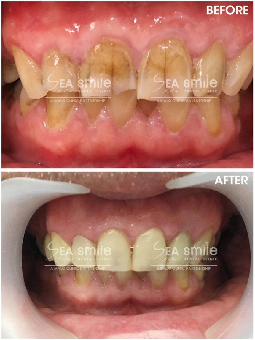 Testimonials  Sea Smile Dental Clinic