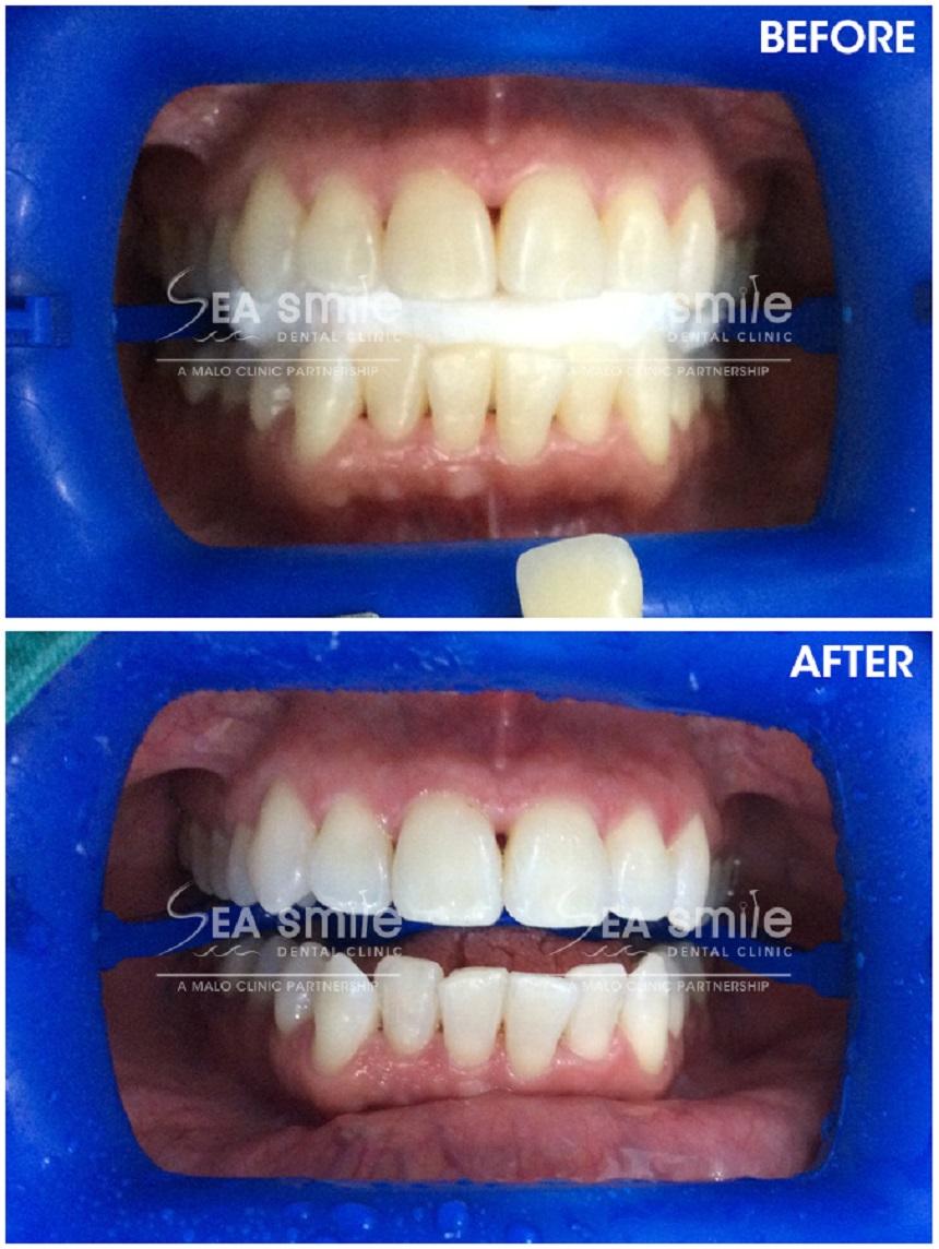 Testimonials | Sea Smile Dental Clinic