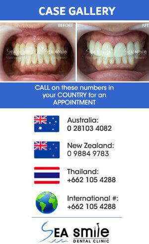 Phuket Dental, Phuket Dentist At Sea Smile Dental Clinic