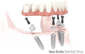 Full Mouth Dental Implants Cost Thailand in Phuket dental clinic