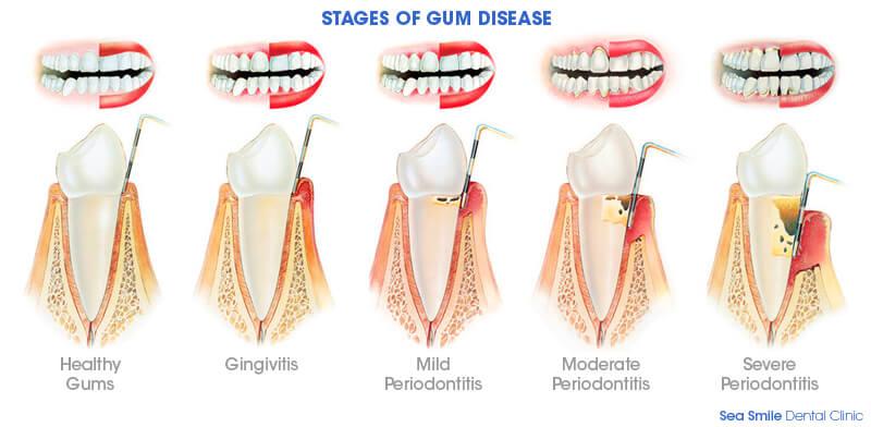 Phuket Gum Treatment   Sea Smile Dental Clinic Patong Beach, Phuket