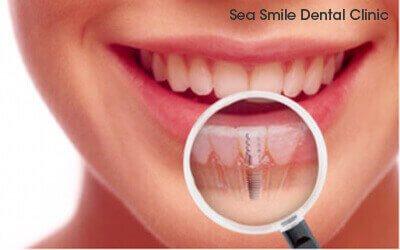Phuket Dental Phuket Dentist At Sea Smile Dental Clinic Patong Beach